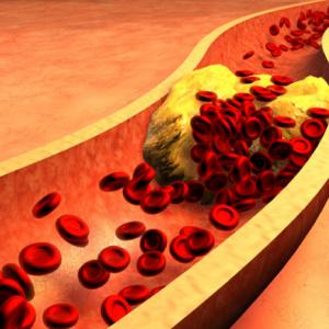 Гиперлипидемия: причины, диагностика и лечение