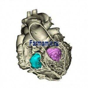 Больница печатает первое 3D-сердце, используя несколько методов визуализации