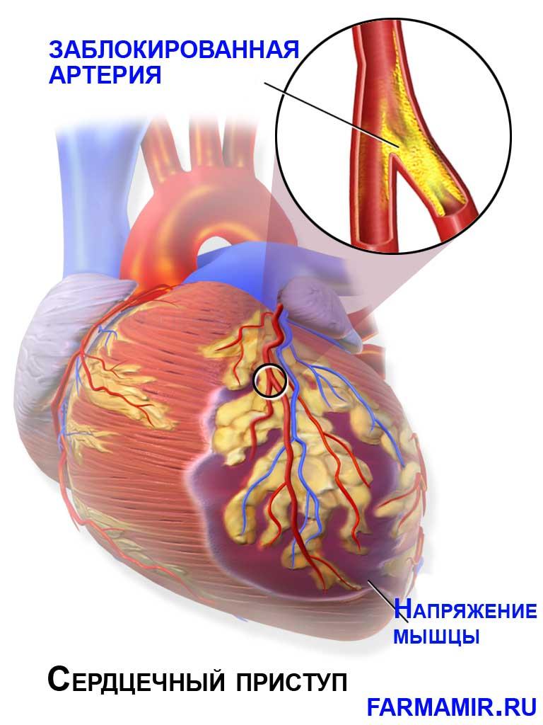 Инфаркт миокарда сердечный приступ