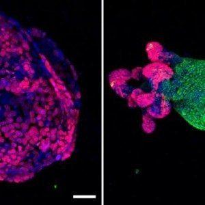 Клетки колоректального рака обратно превратились в нормально функционирующие клетки в лабораторных условиях