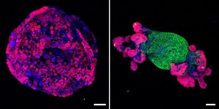 клетки рака превратились в нормальные