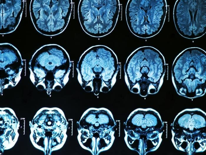 Энцефалопатия губчатая фото