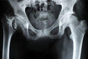 osteoarteoz-tazobedernogo-systava-deformaciya56
