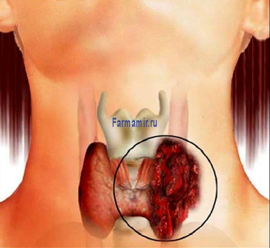 thyroid_cancer-20371