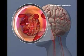 сгусток крови в сонной артерии
