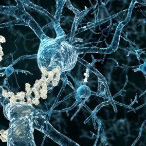 Пациенты с болезнью Альцгеймера могут получить пользу от раннего лечения новым препаратом