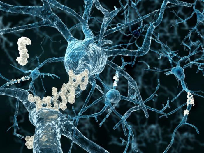 мозговые бляшки на нервных клетках