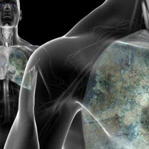 Факторы риска и профилактика рака легких
