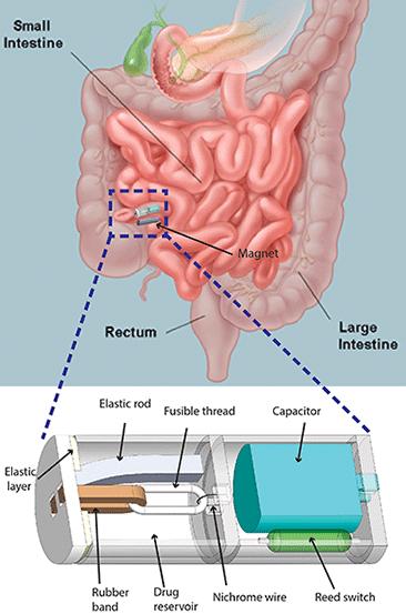 таблетка в кишечнике