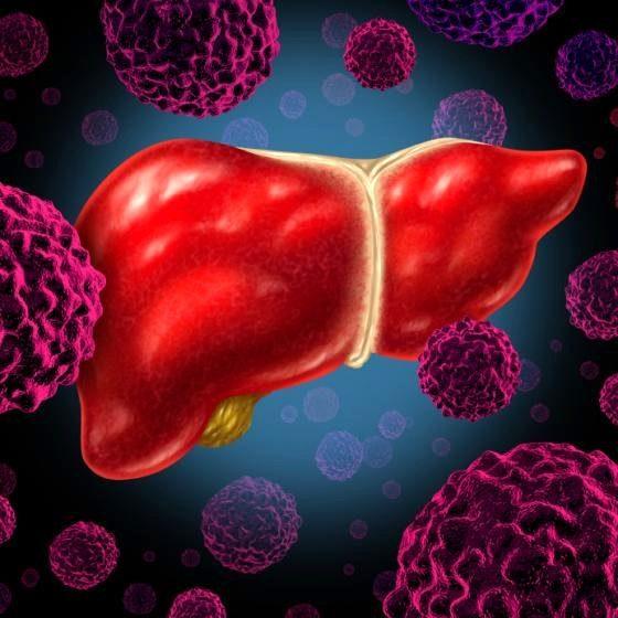 иллюстрация рака печени
