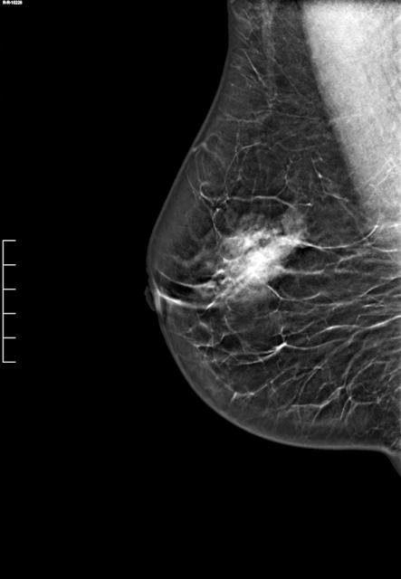 пример маммограммы