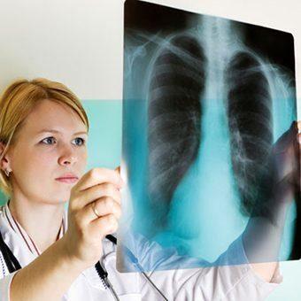 девушка врач смотрит снимок грудной клетки