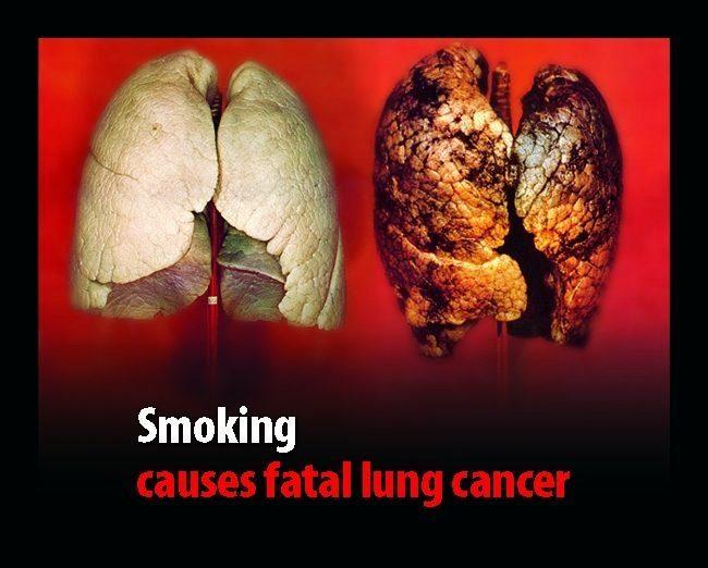 курением причины смертельного- рака легких