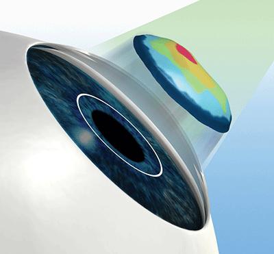3d-сканирования глаз