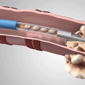 Устройство для биопсии легких GenCut компании Medtronic берет несколько образцов за один раз