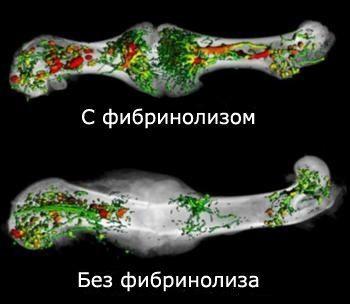 срастание костей