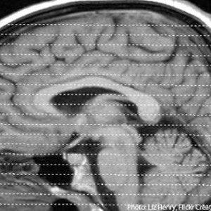 Часто используемые препараты могут замедлить восстановление после травмы головного мозга