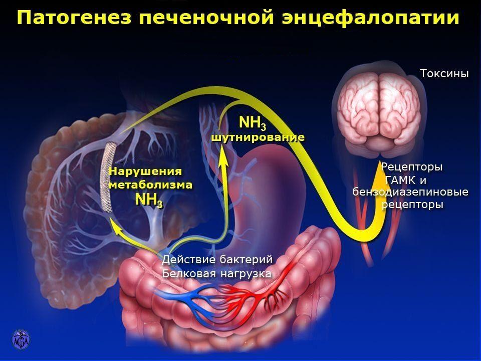 алкоголь Патогенез печеночной энцефалопатии