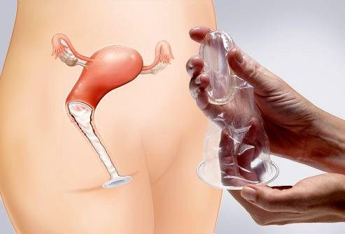 webmd_rf_collage_of_female_condom_application