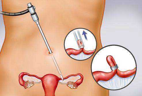 Перевязка маточных труб