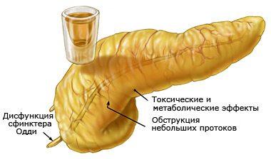 поджелудочная и алкоголь