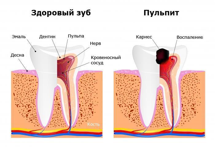 сравнение здорового зуба с кариесом