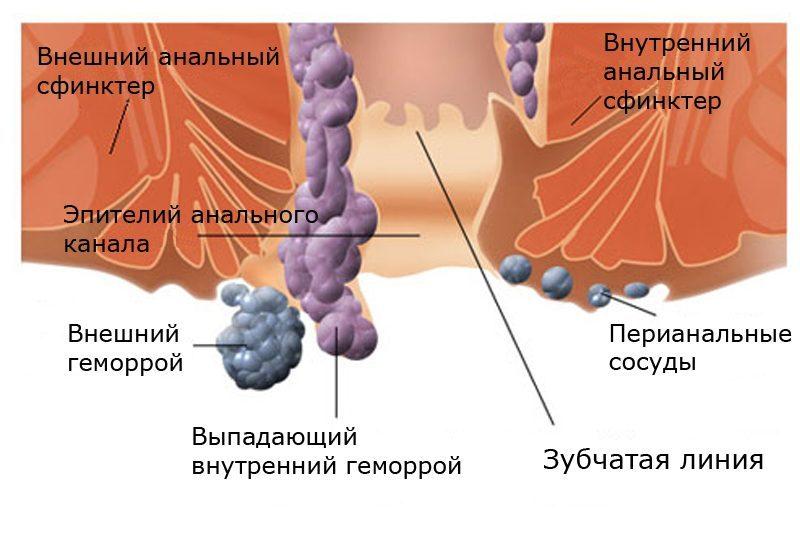 Симптомы тромбированного внешнего геморроя