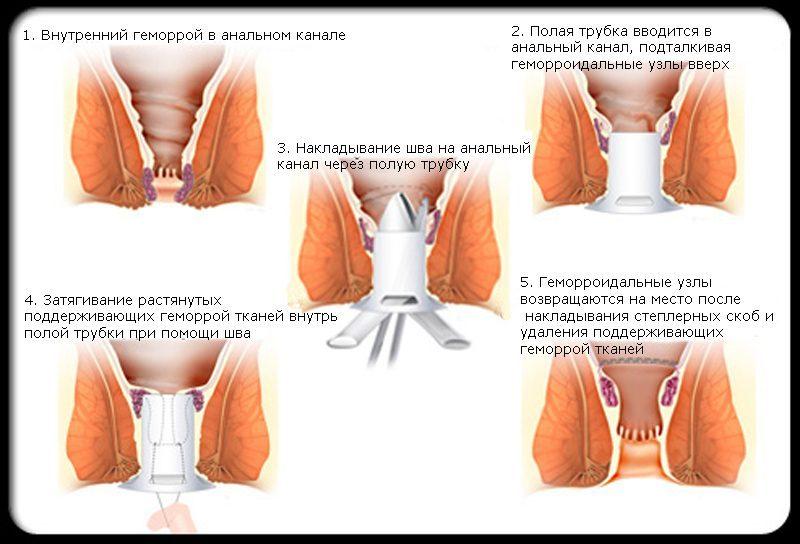 Степлерная геморроидэктомия