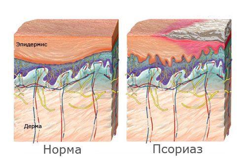 Причины псориаза фото