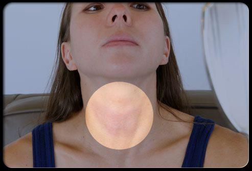 Проверка щитовидной железы и шеи