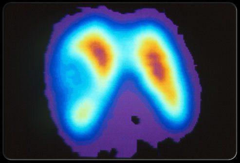 Что насчет рака щитовидной железы?