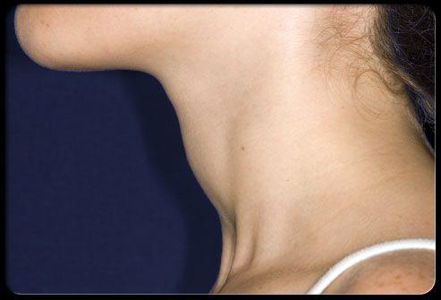 Симптом: увеличенная в объеме шея