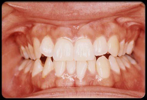 Скрежет зубами разрушает их