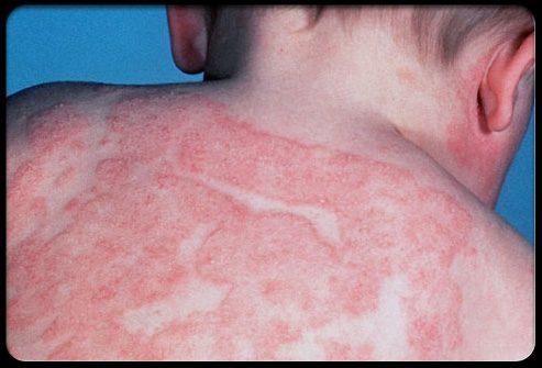Экзема или атопический дерматит у малыша