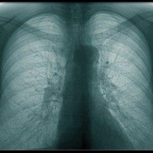 Бронхит: причины, симптомы и лечение, фото