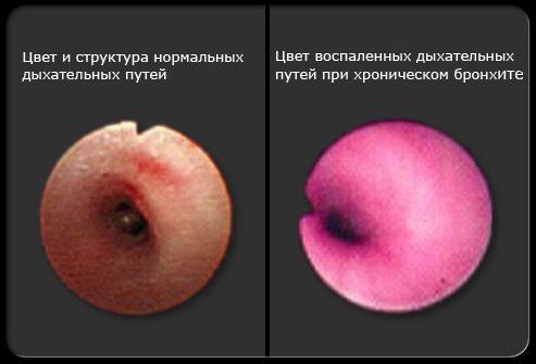 Хронический бронхит фото цвет дыхательных путей