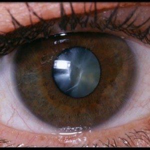 Катаракта: фото, причины, симптомы и хирургическое лечение