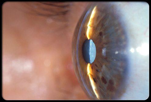 Как диагностируется катаракта?
