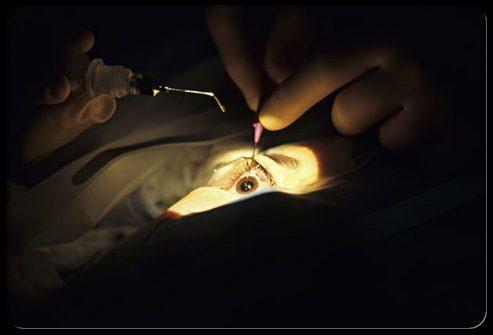 Хирургическое лечение катаракты