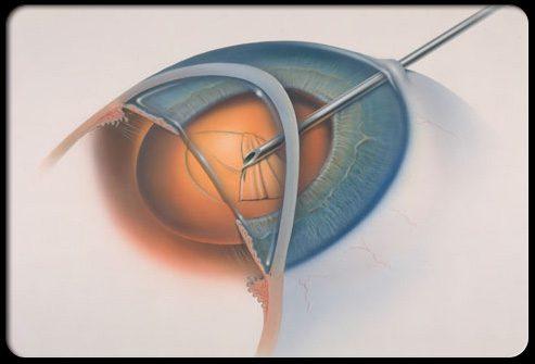 Виды операций по лечению катаракты