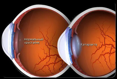 Как на Ваше зрение влияет катаракта