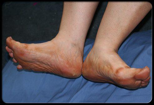 Что такое заболевание периферических сосудов?