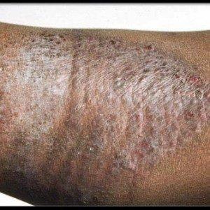 Экзема: фото, причины, симптомы и лечение