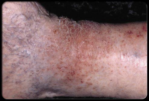 Трофический дерматит