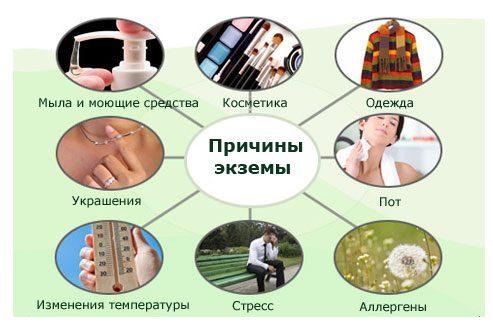 экзема атопический-дерматит-S3--причины-о-экзема