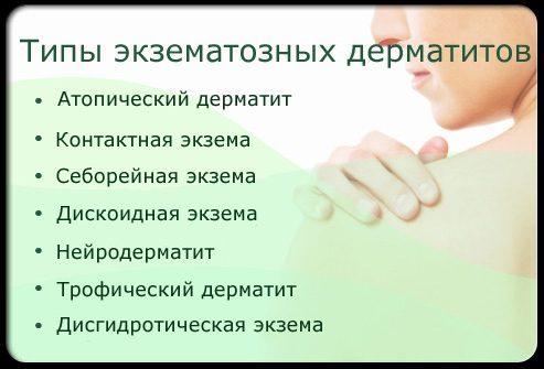 Виды экзематозных дерматитов