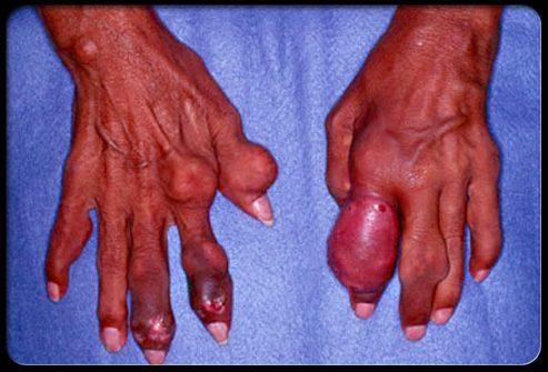 Подагра (пальцы рук)