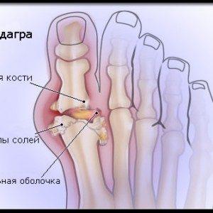 Подагра: причины, симптомы, лечение и профилактика, фото
