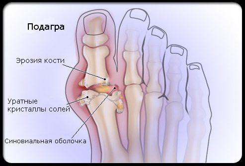Как лечить ревматоидный суставов ног