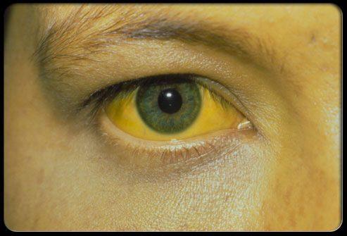 Пожелтение кожи и глаз (желтуха) симптомы гепатита